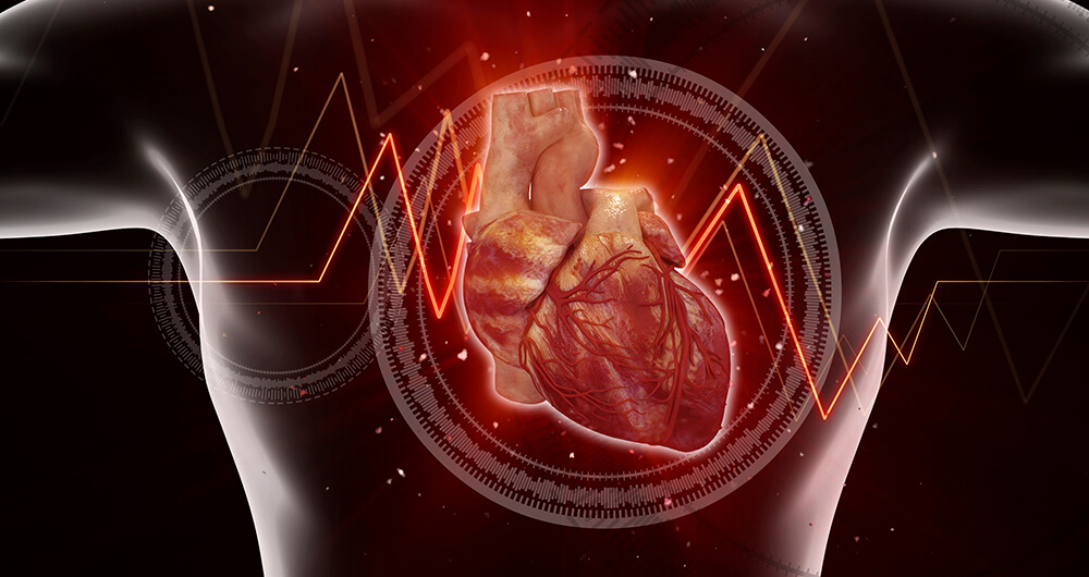 Highlights from the Heart Rhythm Society (HRS) Symposium – AFIb patients indicated for ablation are very likely to have Sleep Apnea