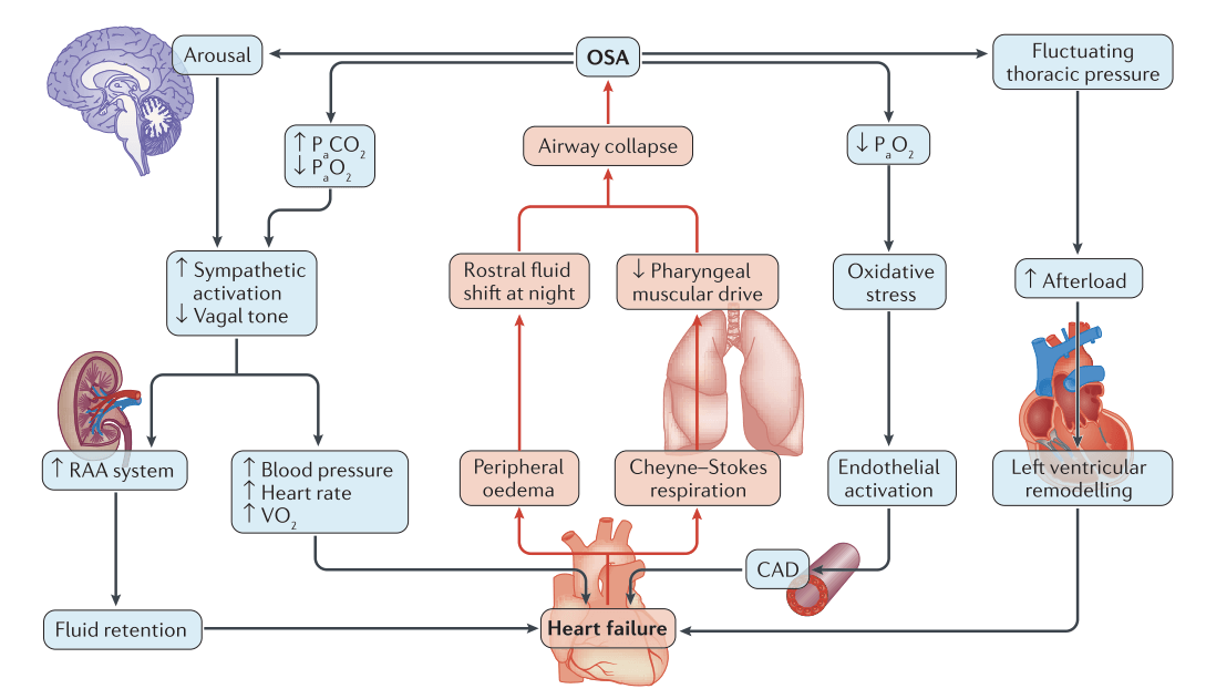 Schematic representation of the mutual interactions between OSA and HF