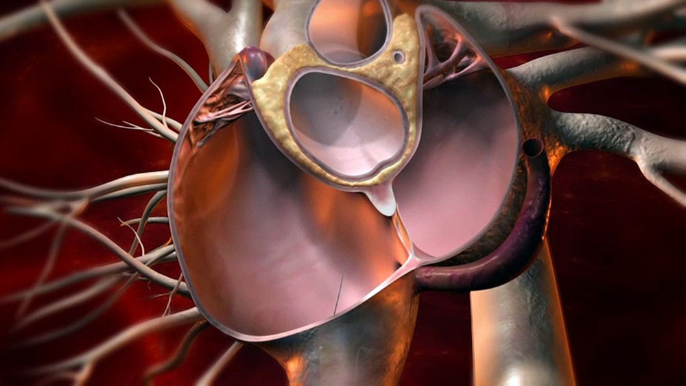 Bidirectional association between OSA and Patent Foramen Ovale